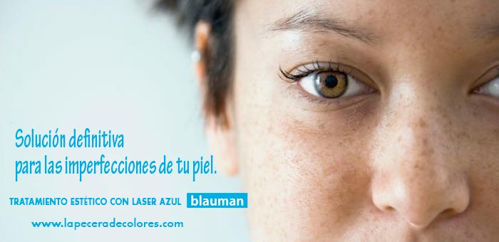 LASER BLAUMAN